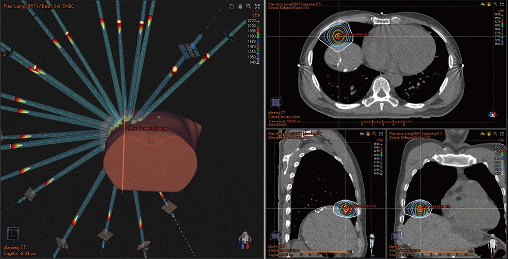 Stereotactic ablative body radiotherapy (SABR) for a single metastatic lung tumor demon- strating operation
